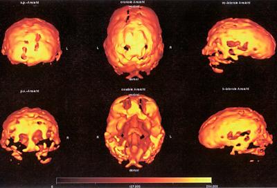 Bildgebende Verfahren entdecken die defekte Großhirnrinde.